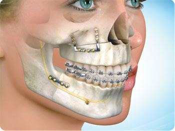 Chirurgia_maxillo_facciale